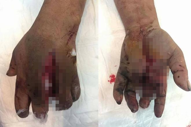 Pin điện thoại dự phòng phát nổ, người đàn ông dập nát bàn tay trái - Ảnh 2.