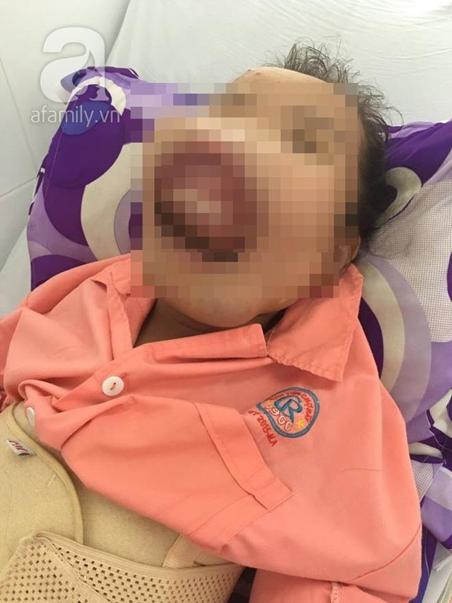 Xót xa người phụ nữ bất ngờ biến dạng khuôn mặt, miệng bị xương hàm bịt kín vì căn bệnh kỳ dị - Ảnh 2.