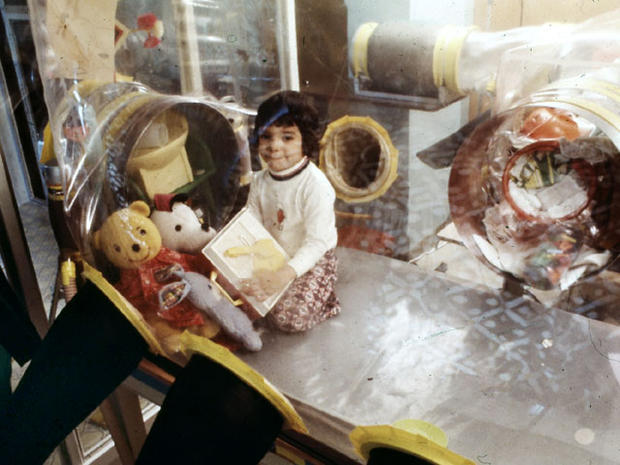 Cậu bé bong bóng: di sản của ngành y học và là phép màu đối với những cậu bé mắc bệnh SCID - Ảnh 5.