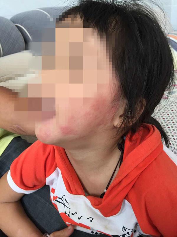 Bé gái 5 tuổi bị bỏng vì điện thoại phát nổ trong lúc ngủ, công ty điện thoại phớt lờ - Ảnh 2.