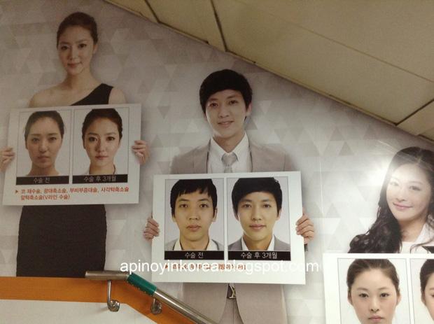 Người nước ngoài đang đổ xô đến Hàn để phẫu thuật thẩm mỹ còn nhiều hơn dân bản địa - Ảnh 1.