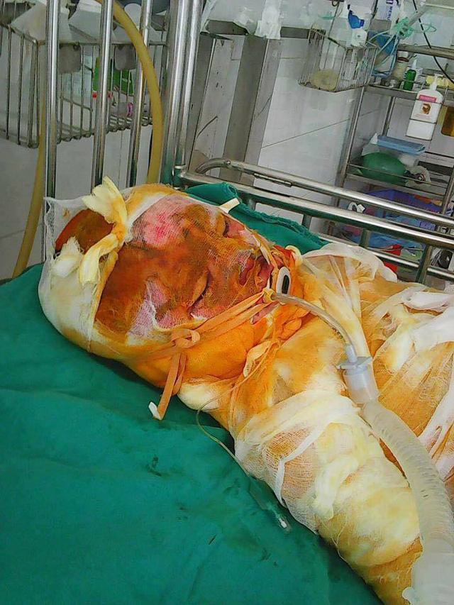 Xót xa bé trai 6 tuổi xem nướng mực bị bỏng 70%, phải cưa chân để cứu mạng sống - Ảnh 1.