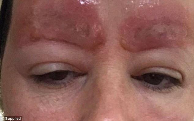 Tưởng xăm cho đẹp, người phụ nữ đâu ngờ nhan sắc bị hủy hoại vì mảng da chân mày sưng đỏ và bong ra - Ảnh 4.
