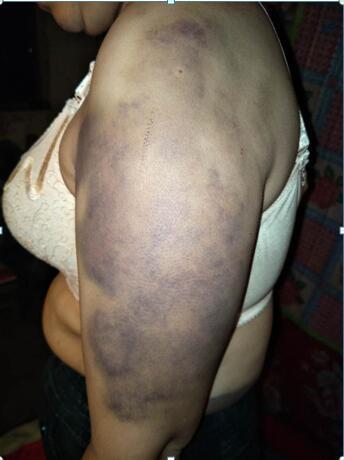 Người phụ nữ bị chồng bạo hành suốt 20 năm, biến thành nô lệ phục vụ cho nhân tình của chồng - Ảnh 1.