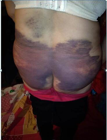 Người phụ nữ bị chồng bạo hành suốt 20 năm, biến thành nô lệ phục vụ cho nhân tình của chồng - Ảnh 2.