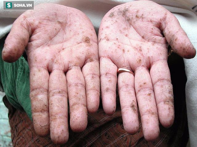 TS Mỹ chỉ rõ 6 dấu hiệu cơ thể nhiễm độc kim loại nặng và cách thải độc hiệu quả - Ảnh 2.