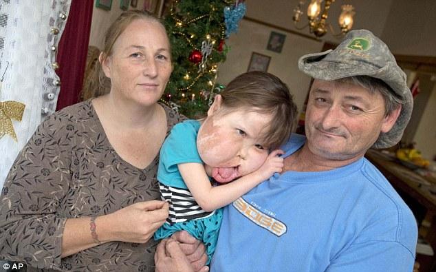 Mắc bệnh hiếm cả bác sĩ cũng chưa đặt tên, bé gái 9 tuổi mang gương mặt khổng lồ biến dạng - Ảnh 1.