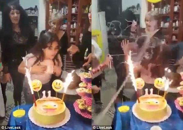 Bé gái suýt biến thành đuốc sống chỉ vì một vật thường dùng trong bữa tiệc sinh nhật - Ảnh 2.