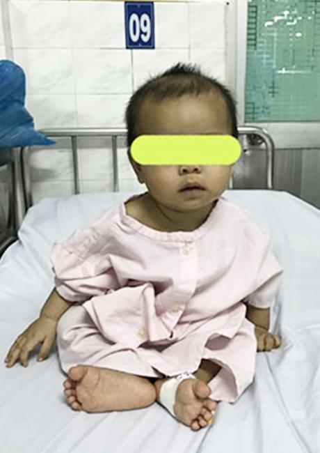 Phụ huynh cẩn trọng: Giật hoa tai của mẹ nuốt vào bụng, bé gái 7 tháng tuổi bị rách thực quản - Ảnh 3.