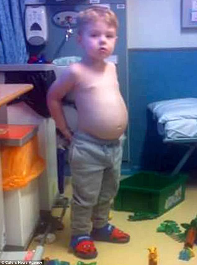 Cứ tưởng con tăng cân nên má phính bụng to, ai ngờ đưa đi khám bố mẹ mới tá hỏa khi biết rõ nguyên nhân - Ảnh 1.