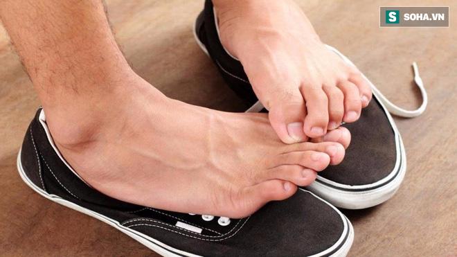 Cậu bé 12 tuổi suýt chết vì nhiễm trùng, lời cảnh báo cho những ai đi giày mà không đi tất - Ảnh 1.