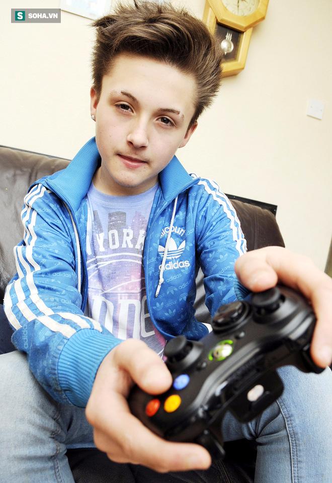 Cậu bé 12 tuổi suýt chết vì nhiễm trùng, lời cảnh báo cho những ai đi giày mà không đi tất - Ảnh 2.