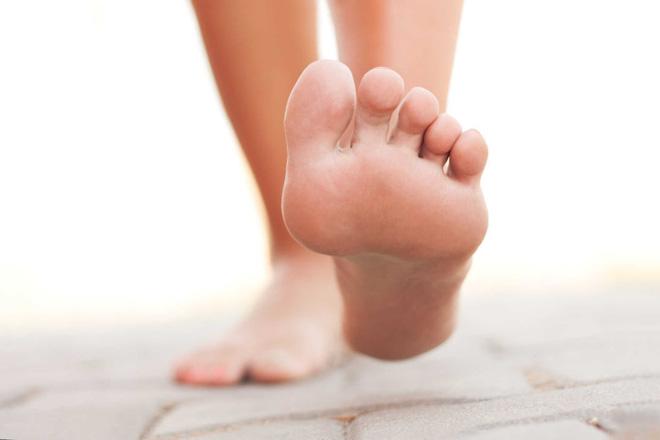 Khi có 4 dấu hiệu này ở bàn chân, có thể bạn đã rơi vào bẫy bệnh tiểu đường - Ảnh 5.