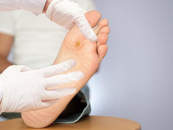 Khi có 4 dấu hiệu này ở bàn chân, có thể bạn đã rơi vào bẫy bệnh tiểu đường - Ảnh 2.