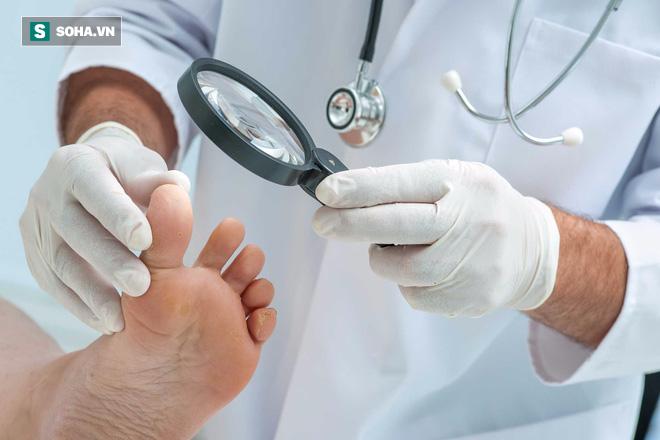 Khi có 4 dấu hiệu này ở bàn chân, có thể bạn đã rơi vào bẫy bệnh tiểu đường - Ảnh 3.