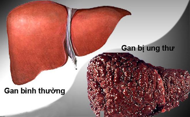 Dấu hiệu quan trọng cảnh báo bệnh gan đang tiến triển trong cơ thể, nếu có thì hãy đi khám - Ảnh 1.