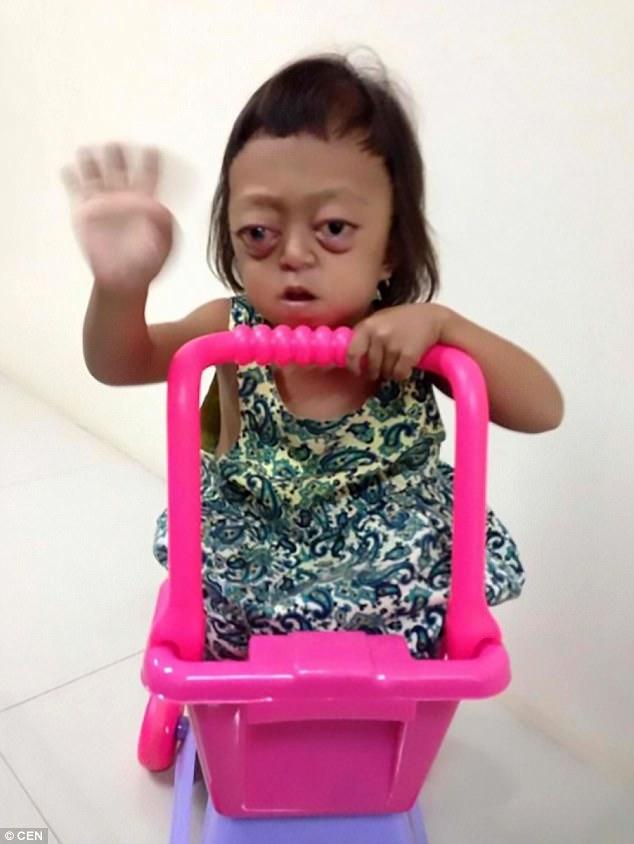Bé gái bị bệnh không thể ngủ, bị mẹ bán cho cái bang, ngày ngày chịu đòn để xin tiền - Ảnh 3.
