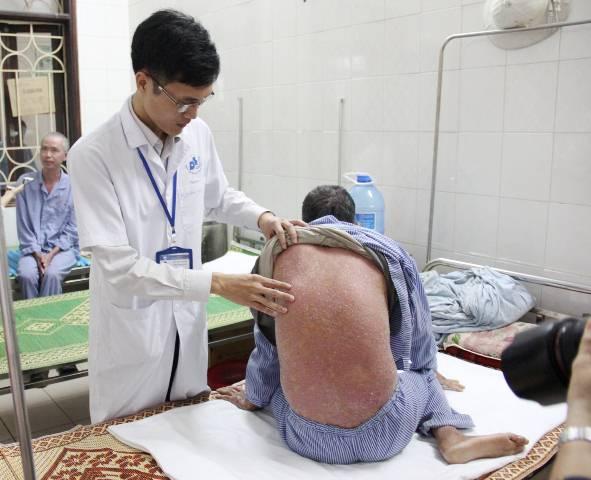 Toàn thân chảy mủ vì dùng thuốc không rõ nguồn gốc chữa vảy nến - Ảnh 2.