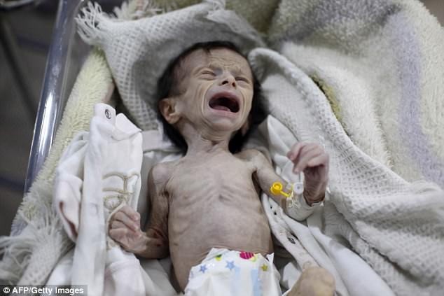 Em bé Syria với thân hình chỉ còn da bọc xương giữa bom đạn chiến tranh khiến cả thế giới xót xa - Ảnh 1.