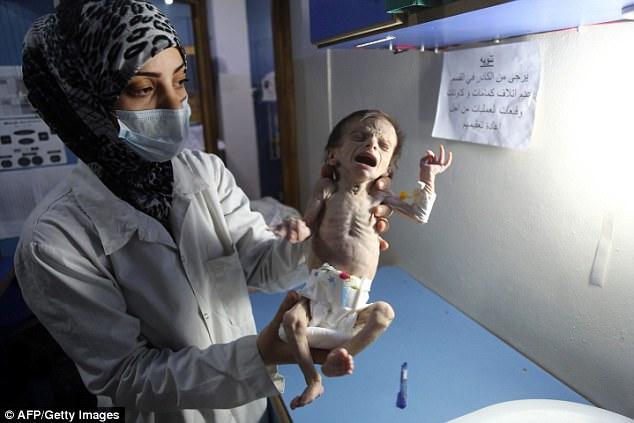 Em bé Syria với thân hình chỉ còn da bọc xương giữa bom đạn chiến tranh khiến cả thế giới xót xa - Ảnh 2.