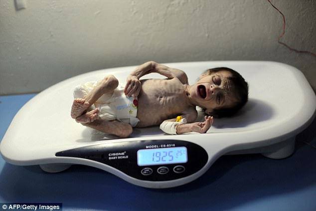 Em bé Syria với thân hình chỉ còn da bọc xương giữa bom đạn chiến tranh khiến cả thế giới xót xa - Ảnh 4.