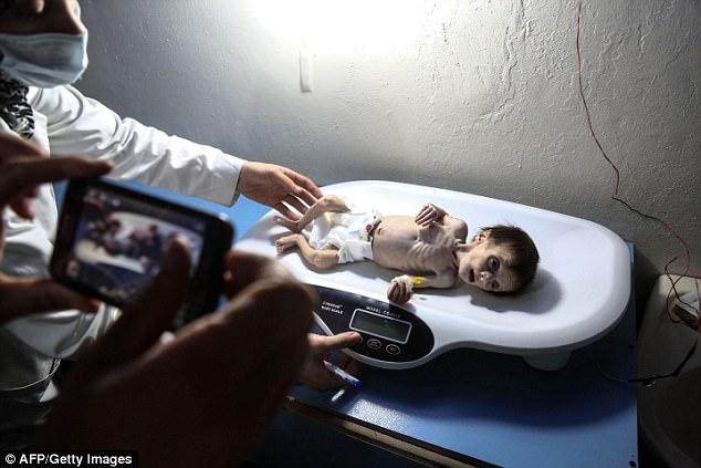 Em bé Syria với thân hình chỉ còn da bọc xương giữa bom đạn chiến tranh khiến cả thế giới xót xa - Ảnh 5.
