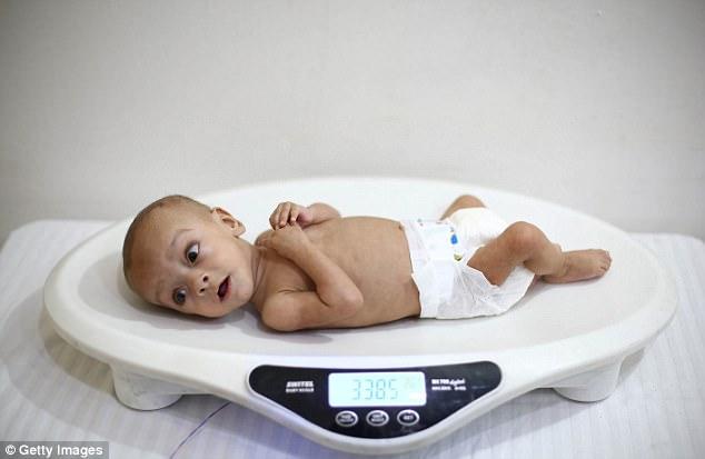 Em bé Syria với thân hình chỉ còn da bọc xương giữa bom đạn chiến tranh khiến cả thế giới xót xa - Ảnh 7.