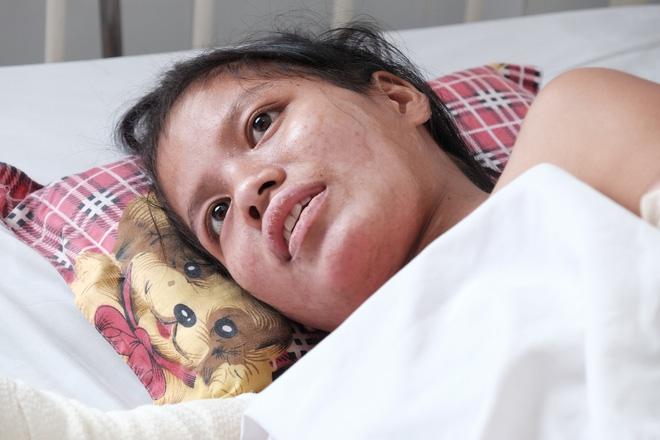 Sau hơn 20 ngày điều trị, khuôn mặt người mẹ trẻ đã cải thiện.