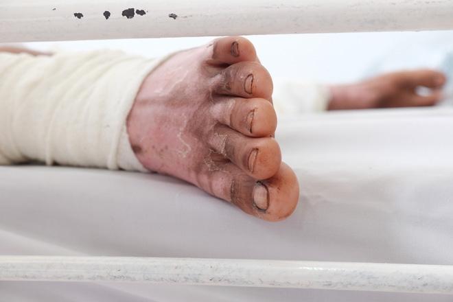 ...và chân của chị Loan vẫ còn chi chít vết sẹo, phải băng bó lại.