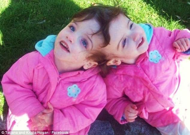 Cặp song sinh dính liền đầu được chẩn đoán chỉ sống được 1 ngày, 10 năm sau bao người kinh ngạc - Ảnh 2.
