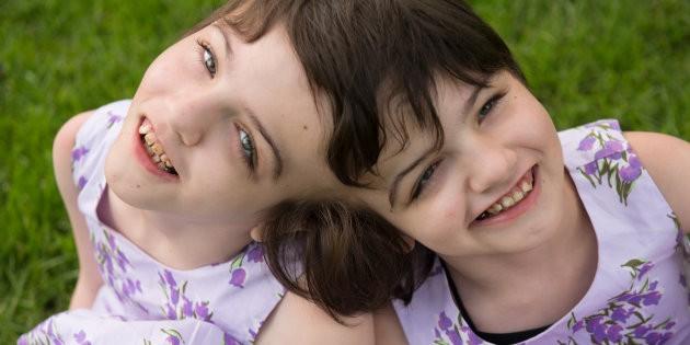 Cặp song sinh dính liền đầu được chẩn đoán chỉ sống được 1 ngày, 10 năm sau bao người kinh ngạc - Ảnh 3.