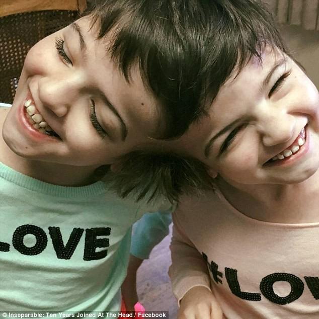 Cặp song sinh dính liền đầu được chẩn đoán chỉ sống được 1 ngày, 10 năm sau bao người kinh ngạc - Ảnh 4.