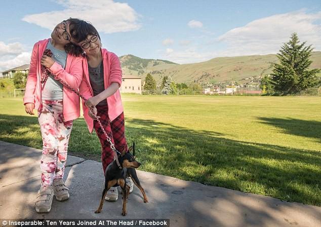 Cặp song sinh dính liền đầu được chẩn đoán chỉ sống được 1 ngày, 10 năm sau bao người kinh ngạc - Ảnh 7.