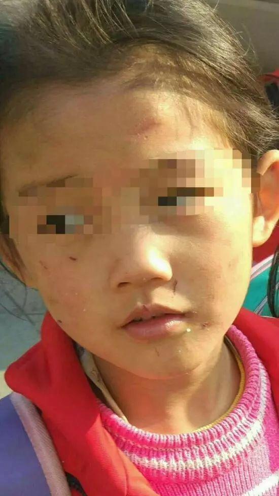 Bé gái 6 tuổi bị mẹ đẻ ngược đãi dã man khiến mặt đầy vết thương, tóc rụng thành mảng lớn - Ảnh 1.