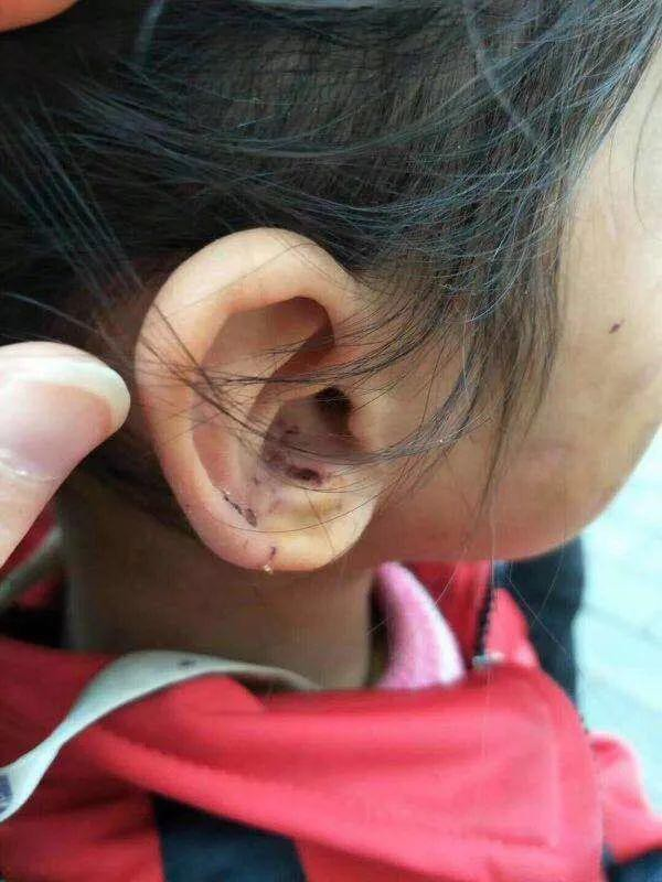 Bé gái 6 tuổi bị mẹ đẻ ngược đãi dã man khiến mặt đầy vết thương, tóc rụng thành mảng lớn - Ảnh 2.