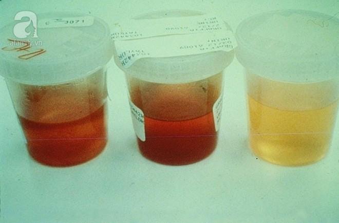 """Uống thảo dược không rõ nguồn gốc - phương pháp """"tự sát"""" trong điều trị đái tháo đường - Ảnh 3."""
