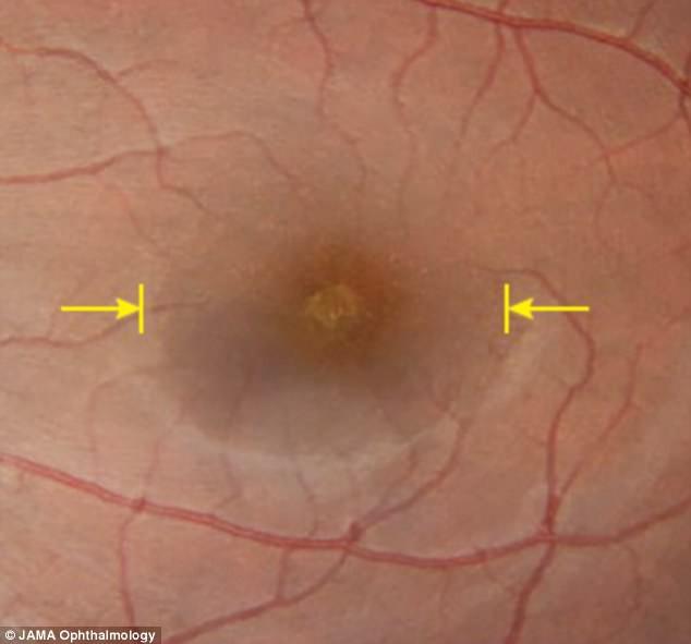 Trải nghiệm nhật thực đặc biệt nhất thế kỷ, người phụ nữ đau đớn mang thương tật suốt đời trên mắt - Ảnh 3.