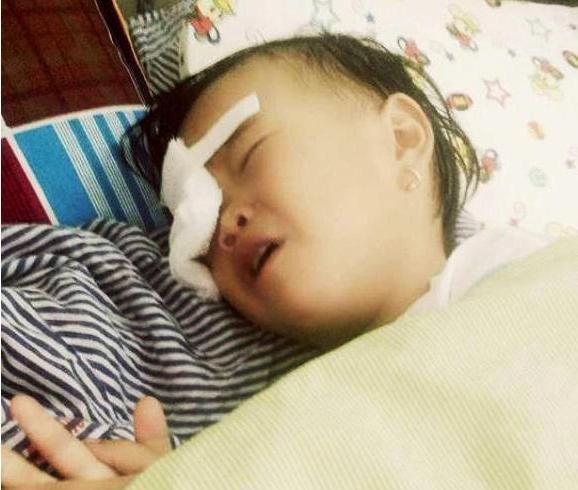 Nghệ An: Bé gái 2 tuổi bị gà chọi đá, nguy cơ hỏng mắt phải - Ảnh 1.
