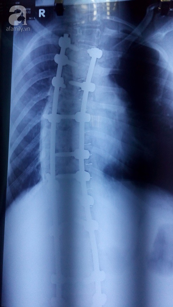 TP.HCM: Cột sống ngực vẹo 111 độ, lưng bé gái 12 tuổi cong như hình chữ S - Ảnh 3.