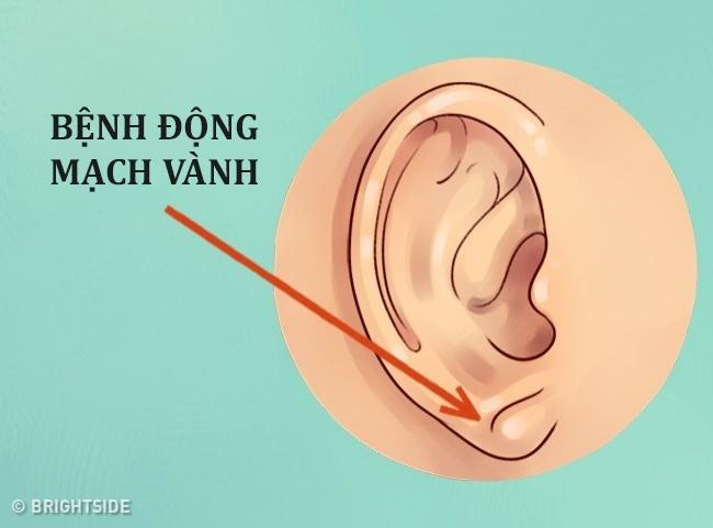 Đừng xem thường, tai không chỉ để nghe và xem tướng mà còn chẩn bệnh được đấy - Ảnh 3.