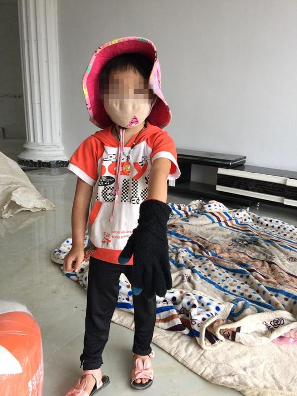 Bé gái 5 tuổi bị bỏng vì điện thoại phát nổ trong lúc ngủ, công ty điện thoại phớt lờ - Ảnh 3.