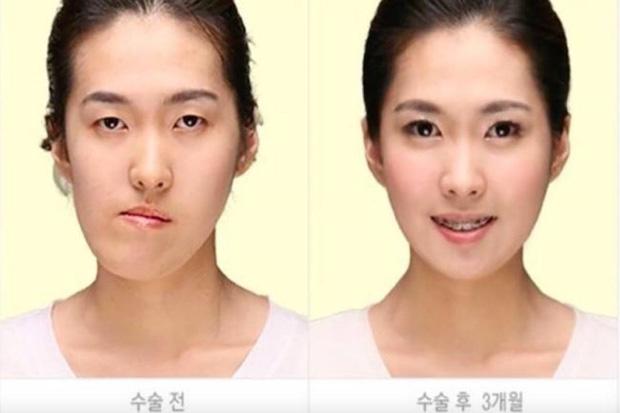 Người nước ngoài đang đổ xô đến Hàn để phẫu thuật thẩm mỹ còn nhiều hơn dân bản địa - Ảnh 3.