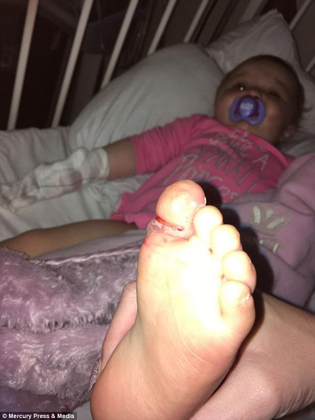 Giẫm phải nước tiểu của chó trên bãi biển, em bé 8 tháng tuổi phải cắt bỏ gần hết một ngón chân - Ảnh 3.
