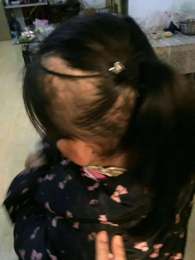 Bé gái 6 tuổi bị mẹ đẻ ngược đãi dã man khiến mặt đầy vết thương, tóc rụng thành mảng lớn - Ảnh 3.