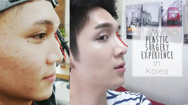 Nam giới Hàn Quốc đua nhau đi phẫu thuật thẩm mỹ để trở thành trai xinh như thần tượng - Ảnh 4.