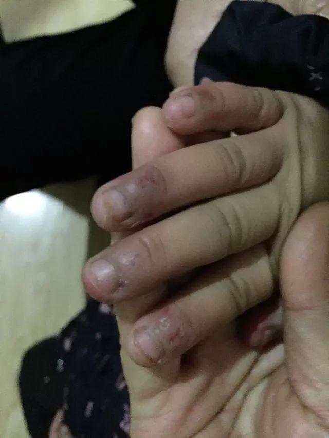 Bé gái 6 tuổi bị mẹ đẻ ngược đãi dã man khiến mặt đầy vết thương, tóc rụng thành mảng lớn - Ảnh 4.