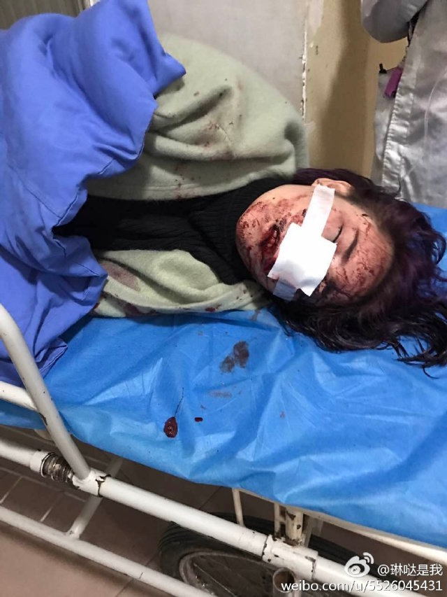 Trung Quốc: Đang ăn BBQ, các cô gái xinh đẹp bất ngờ bị nhóm nam giới say rượu đánh đập, tấn công dã man - Ảnh 5.