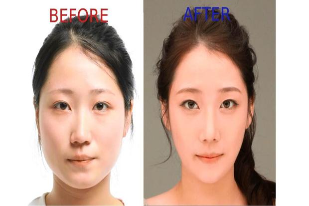 Người nước ngoài đang đổ xô đến Hàn để phẫu thuật thẩm mỹ còn nhiều hơn dân bản địa - Ảnh 5.