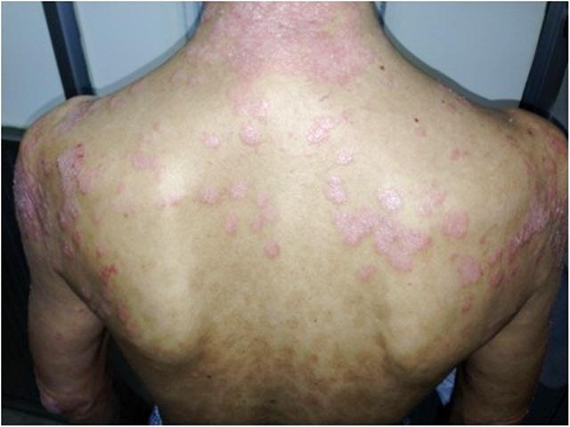 Toàn thân chảy mủ vì dùng thuốc không rõ nguồn gốc chữa vảy nến - Ảnh 3.