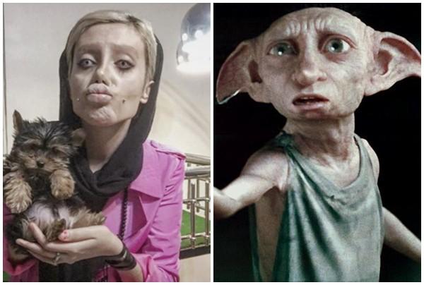 Cô gái phẫu thuật thẩm mỹ hơn 50 lần để nhìn giống Angelina Jolie, kết quả trả về gia tinh Dobby - Ảnh 5.